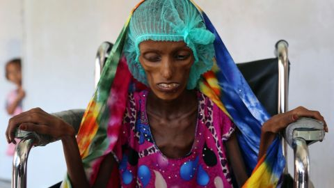 Baghili is being treated for severe malnutrition at al-Thawra hospital in Hodeida.