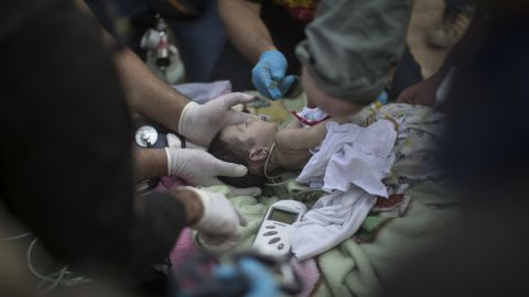 An injured baby receives treatment at a field hospital in Mosul on November 15.