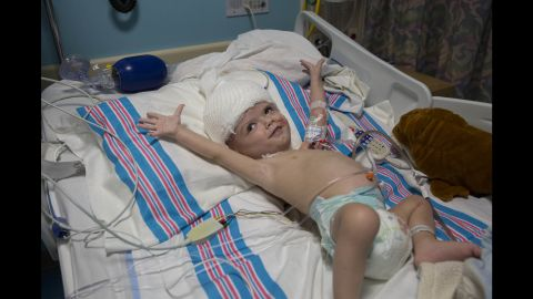 Jadon stretches his arms in his room within the hospital's pediatric intensive care unit. Anias rests in a nearby bed in the same room.