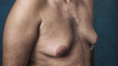 Risperdal Male Gynecomastia Johnson Johnson lawsuit nccorig_00011229.jpg