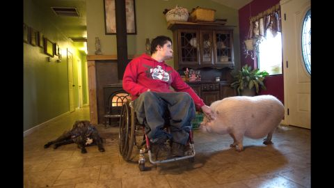 Derek Longwell, 20, has spina bifida, hydrocephalus, a neurogenic bowel and bladder, and bi-lateral clubbed feet. He and his family live in on a farm in Shingletown, California, with nearly 100 farm animals and pets. Derek has had 42 surgeries in his life.