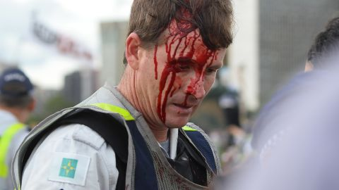 A police officer is seen with an injury during clashes with protesters  in Brasilia on December 13.