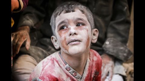 A wounded Syrian boy cries after bombs fell on the opposition-controlled Firdevs neighborhood in Aleppo on October 11, 2016.