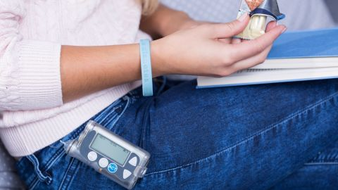 Diabetic woman with an insulin pump holding a sweet snack.