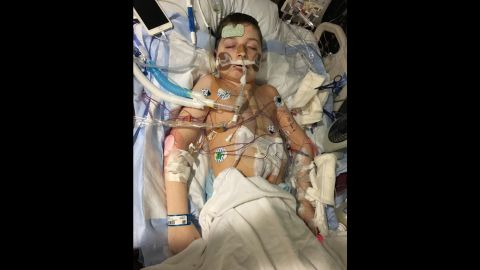 November 2016: Spencer at St. Louis Children's Hospital immediately after his heart-lung transplant.