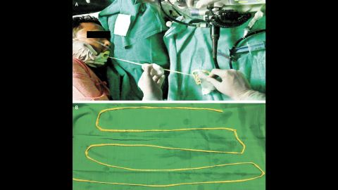 Doctors sedated the man and removed this 6-foot-long tapeworm through his mouth.
