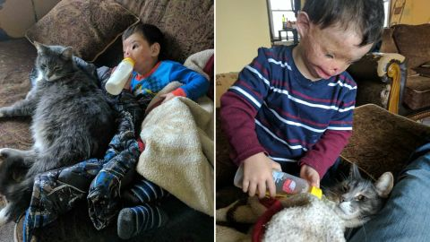 Around his first birthday, Dilbireen was burned in a fire. He flew to the US for reconstructive surgery on his face in October.