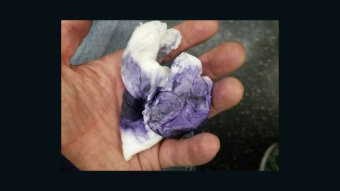 Nied shows one of the wipes he used to remove the graffiti.