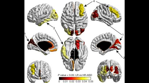 Figure 2 | Cortical regions that show significant expansion in surface area from 6 to 12 months in HR-ASD. A map of significant group differences in surface area from 6 to 12 months. Exploratory analyses were conducted with a surface map containing 78 regions of interest (see Supplementary Information), using an adaptive Hochberg method of P<0.05. The coloured areas show the group effect for the HR-ASD versus LR subjects. Compared to the LR group, the HR-ASD group had significant expansion in the cortical surface area in the left/right middle occipital gyrus and right cuneus (1), right lingual gyrus (2), and to a lesser extent in the left inferior temporal gyrus (3), and middle frontal gyrus (4) (HR-ASD, n=34; LR, n=84).
