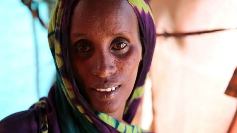 Fatuma Hassan Hussein is tired and gaunt. She says she travelled more than a hundred miles to get to a camp in Baidoa, Somalia.
