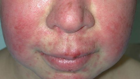 """A """"butterfly rash"""" on the face occurs in about half of cases."""