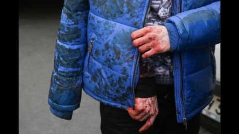 A man with bleeding hands stands outside the entrance to the Tekhnologichesky Institut station.