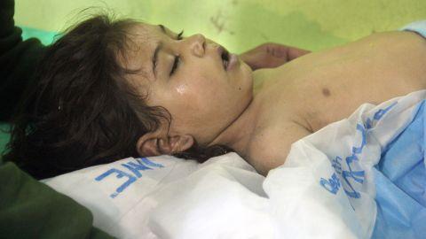 An unconscious Syrian child receives treatment at a hospital in Khan Sheikhoun.