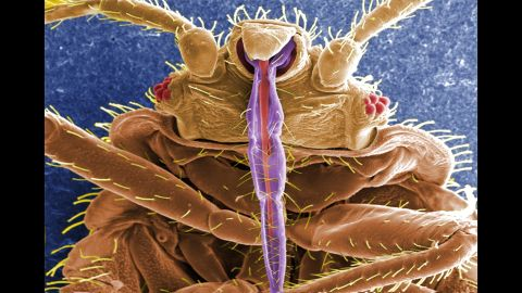 This is a digitally colorized electron micrograph scan of the underside of a bed bug. The purple spike is the insect's skin piercing-sucking mouth it uses to devour its meal. The prickly hairs on the body aren't hairs at all but sensory structures known as setae.