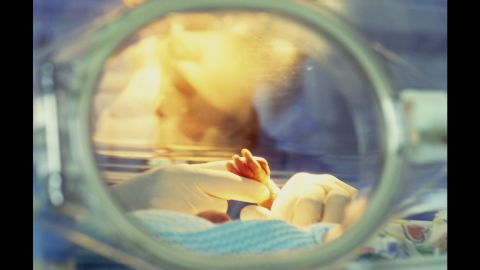 The main cause of death for newborns around the world, says the American Academy of Pediatrics, is being born premature. About 450,000 babies a year, or one in nine, are born prematurely in the US alone. Adding a surfactant, or lubricant, to the lungs of a newborn helps them breathe. After it was implemented in 1985, preemie deaths from respiratory distress syndrome dropped by 41% over the next six years.