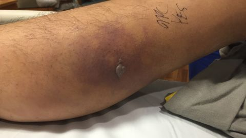 The man's symptoms included a fever, chills and redness around his tattoo and elsewhere on his legs, including his left calf.