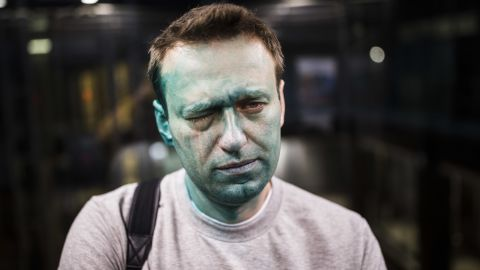 In this April 27, 2017 photo, Russian opposition leader Alexei Navalny is seen after unknown attackers doused him with green antiseptic outside a conference venue in Moscow, Russia. Russian opposition leader Alexei Navalny wrote on Instagram on Tuesday May 9, 2017 that he has undergone eye surgery in Spain and that doctors expect the vision in his right eye to be restored in several months, after being attacked.