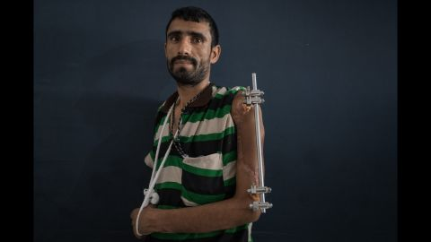 Majed Shoei was injured six months ago when a bomb exploded near him. Money is tight for the father-of-eight, who used to be a construction worker, but is unable to work because of his health and so cannot afford to pay his medical bills.