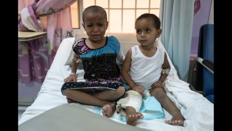 Ahmed, three, and his six-year-old sister Khaoula were orphaned in an airstrike on their house. Ahmed's knee is completely broken and medical staff say that his right leg will no longer grow. Khaoula lost her teeth and most of her tongue in the attack.