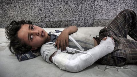 After two and a half years of civil war, Yemen is in the grip of a vicious cholera outbreak and a near famine that have coincided to create one of the worst humanitarian crises on the planet.