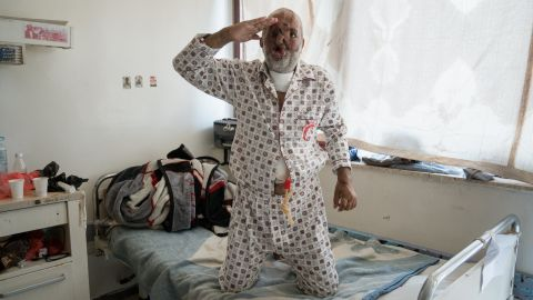 An injured soldier salutes while being photographed on his hospital bed at the Al Thawra Hospital in Sana'a. He sustained disfiguring facial wounds in an airstrike in the northern Saada region of the country.