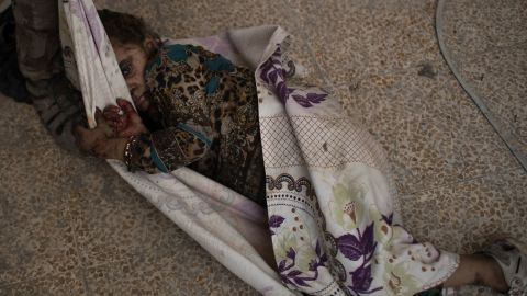 """This injured girl was found by Iraqi forces as they <a href=""""http://www.cnn.com/2017/06/29/middleeast/iraq-mosul-fighting/index.html"""" target=""""_blank"""">advanced against ISIS militants</a> in the Old City of Mosul on Monday, July 3. She was carried away for medical assistance."""
