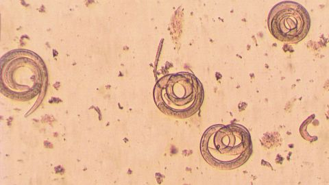 <strong>Trichinella spiralis:</strong> If a human or animal eats meat infected with Trichinella cysts, the Centers for Disease Control and Prevention says, their stomach acid dissolves the hard covering of the cysts. The worms pass into the small intestine, where they lay eggs that develop into immature worms, which travel through the arteries and into the muscles. There, they curl up and return to the original cyst formation, and the life cycle continues. Symptoms can include nausea, diarrhea, vomiting, headaches, fevers, chills, cough, facial swelling, aching joints and muscle pain.