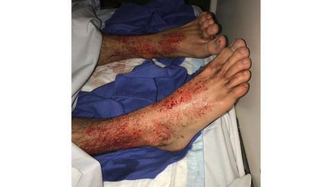 Sam Kanizay's feet were covered in what appeared to be thousands of bleeding pinholes.