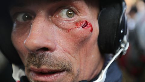 A white nationalist is seen with a cut below his eye suffered during clashes with counterprotesters at Emancipation Park .