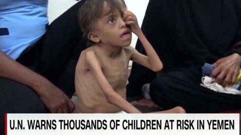 thousands of children at risk yemen kinkade pkg_00001103.jpg