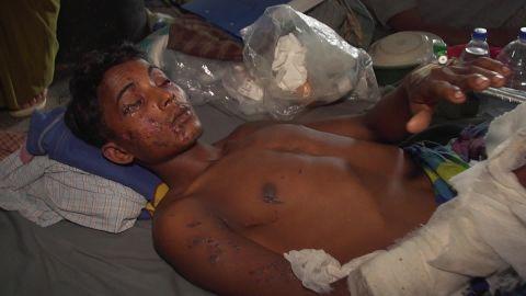 rohingya injured alex field lklv_00005910.jpg