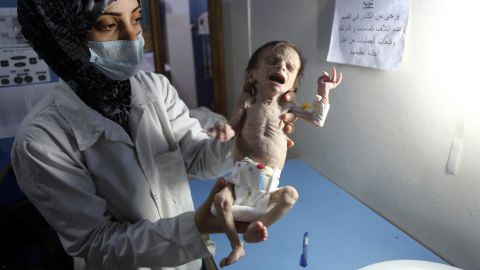 An infant suffering from severe malnutrition in Eastern Ghouta.