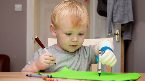 Ryan hopes his device will let young children like Sol grow accustomed to a functioning prosthetic until they are old enough to use a more advanced device.