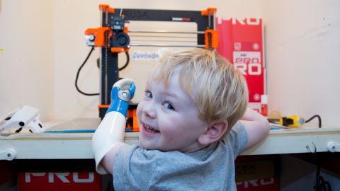 """Sol immediately engaged with his new arm. """"When he was given his first prosthetic he took to it, put it on straight away and never took it off,"""" said Ryan."""