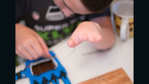 The e-NABLE designs are simple enough that children can build them. Over the past year and a half over 2,000 schools and robotics teams have participated in creating hands.