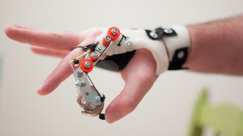 e-NABLE  also encourages students to come up with designs for those who are missing a finger, or who have lost function in their fingers due to arthritis, disease and nerve damage.