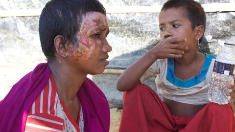 Rohingya refugee Mumtaz and her seven-year-old daughter Razia.