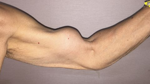 """A 79-year-old man exhibits the characteristic biceps muscle bulge of """"Popeye"""" sign."""