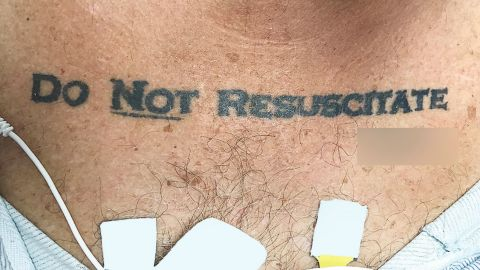 A man admitted to a Florida hospital had an unusual do not resuscitate order, a new study shows.