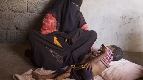 Five-year-old Ahmed Helmi spends most of his day lying on a thin sheet on a concrete floor in a dusty village in Yemen's Lahij Province. He has been malnourished for years,and lost his borther just two months ago to the same ailment.