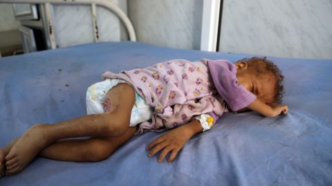 A malnourished Yemeni child receives treatment at a hospital in the Yemeni port city of Hodeidah in December. The United Nations has listed Yemen as the world's No. 1 humanitarian crisis.