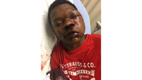Ulysses Wilkerson, 17, was taken to the hospital after his arrest by Troy, Alabama, police.