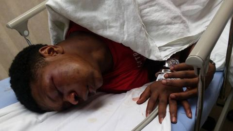 Ulysses Wilkerson, 17, was handcuffed to a gurney at a Birmingham hospital, his father says.
