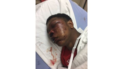 Ulysses' father says the boy was treated for brain swelling and a cracked eye socket.
