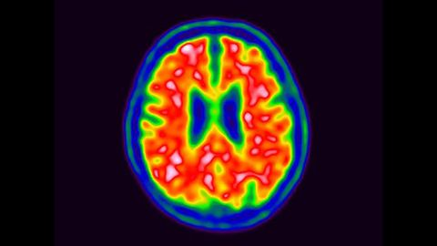 A new study released claims scientists in Australia and Japan have developed a new blood test to detect the early stages of Alzheimer's disease.