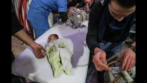 Injured children are treated at a hospital in Douma.