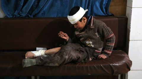 Ghaith, a wounded 12-year-old boy, cries as he waits for treatment -- and news of his mother in the operating room -- at a makeshift hospital in Kafr Batna. They were hurt in airstrikes on the town of Jisreen.