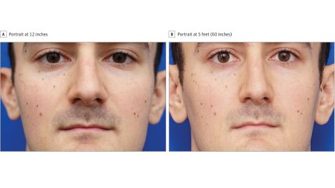 Two photos of a man illustrate the perceived differences in nose size at 12 inches versus 5 feet.