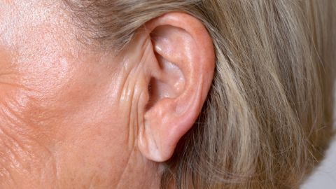Studies have shown that there is an association with Frank's sign, the visible external crease on the earlobe, and increased risk of atherosclerosis, a disease in which plaque builds up inside your arteries.