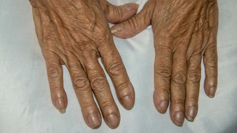 Nail Clubbing on a Female Patient